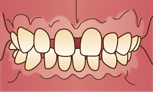 「すきっ歯」