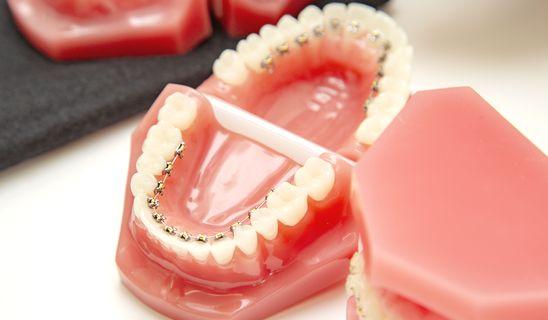 日本矯正歯科学会専門医の豊富な経験から、幅広い歯並びの乱れに対応