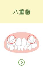 八重歯へのリンクボタン