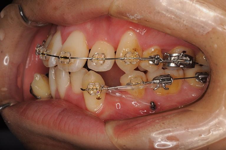 自由度の高い歯